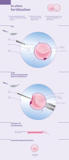 IVF_ICSI_engl