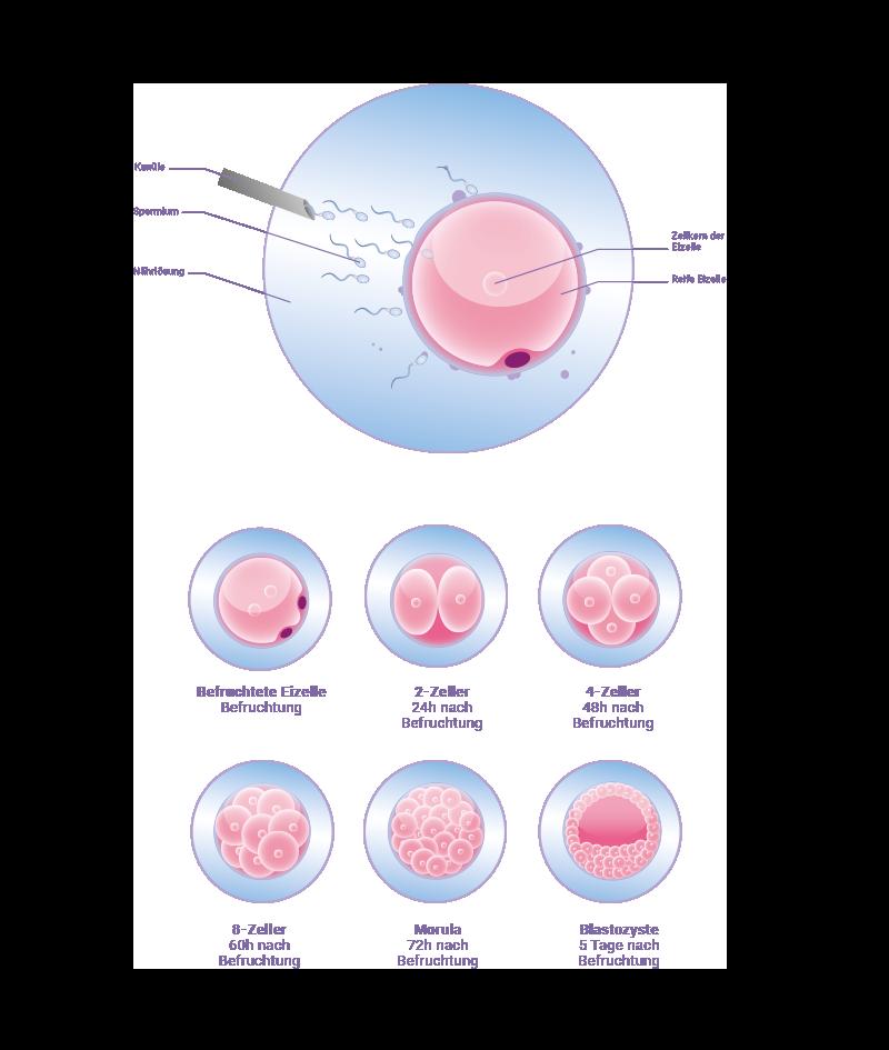 Strowitzki_Bachelorarbeit_Infografik